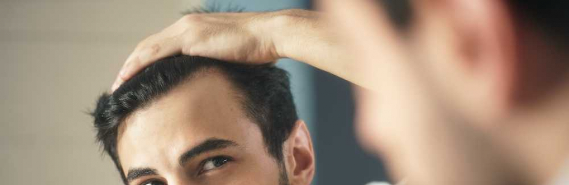 american hairline Cover Image